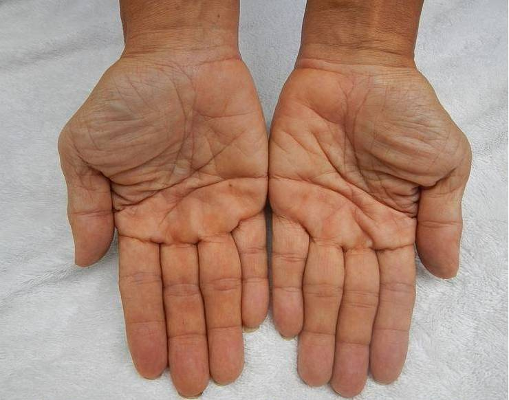 Two human hands, palms open